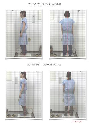 26歳女性3回で猫背姿勢変化
