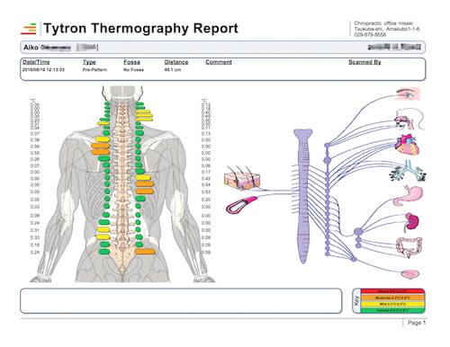 tytron-report5